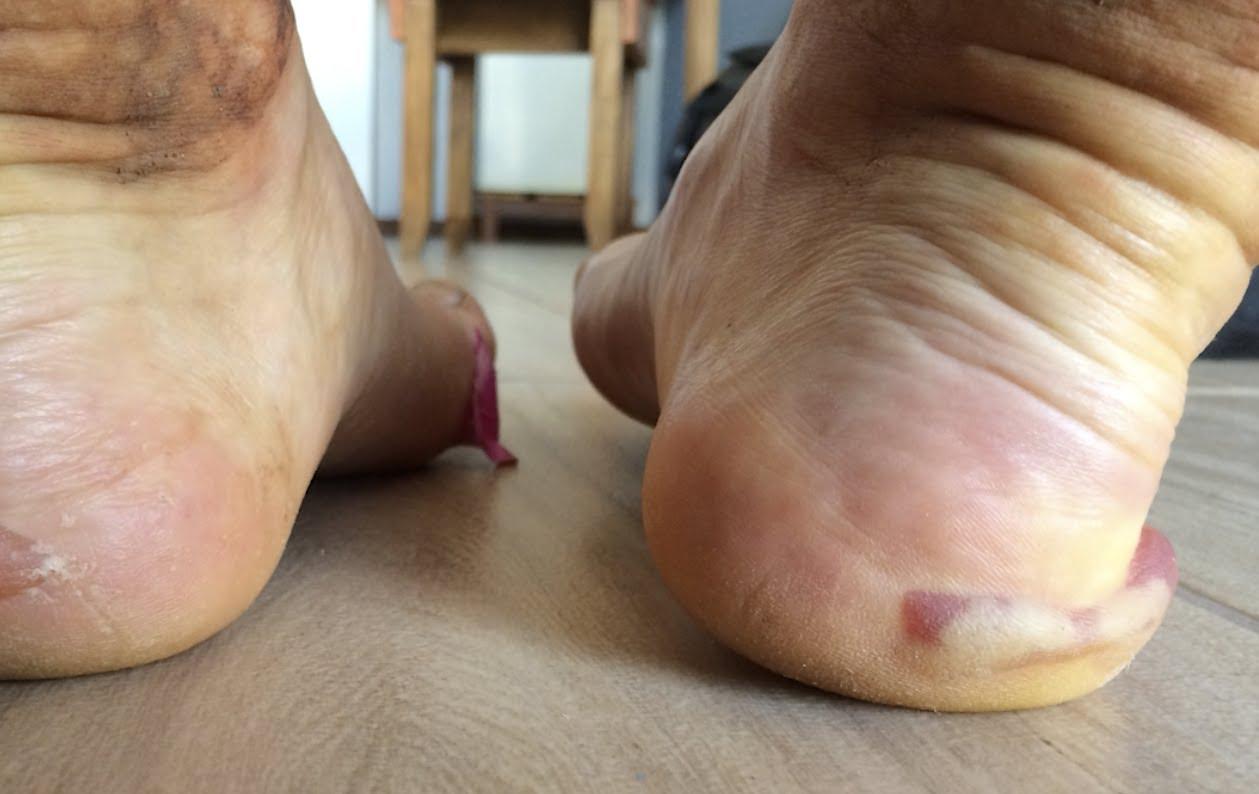 VIDEO: Vaata, mis juhtub jalgadega, kui joosta 135 miili