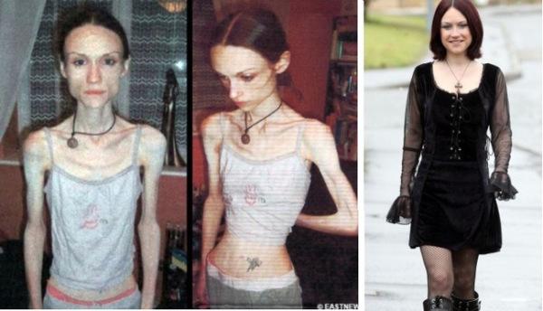 FOTOD: Vaata, kui head näevad välja need tüdrukud olles paranenud anoreksiast