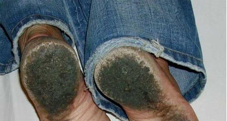FOTOD: Mees, kes ei ole kandnud jalatseid 8 aastat