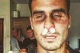 FOTO: Kristjan Kasearu sai peksa
