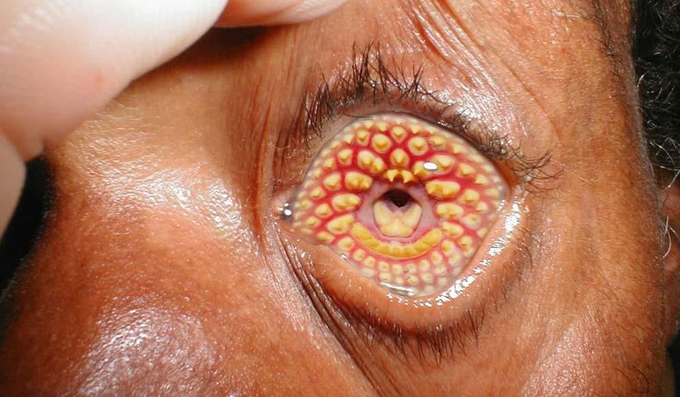 FOTOD: Kohutavad haigused ja erinevad meditsiinilised seisundid, mis on inimesi tabanud