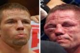 FOTOD: Võitlejad enne ja pärast võitlust