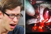 VIDEO: Noormees vaatab pealt enda operatsiooni