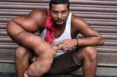 VIDEO: Sellel mehel on haigus, mille tulemusena kaalub ta käsi peaaegu 20 kilo