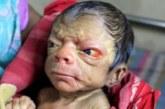 Suur oli ema üllatus, kui laps sündis sellisena…