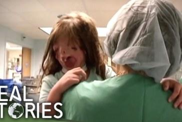 VIDEO: Juliana Wetmore – tüdruk, kes sündis ilma näota