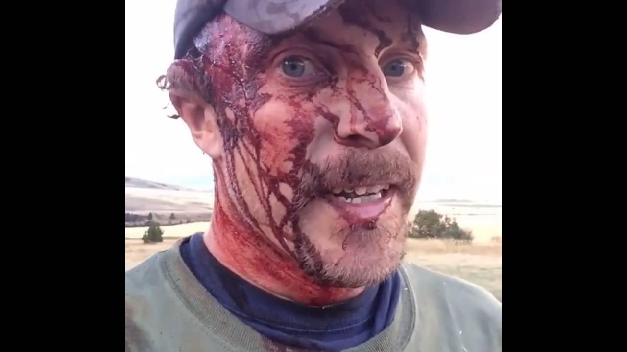 VIDEO: KOHUTAV – mees näitab vahetult peale karu rünnakut oma haavasid