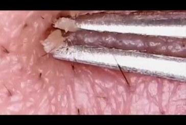 VIDEO: Punnide pigistamine lähivaates