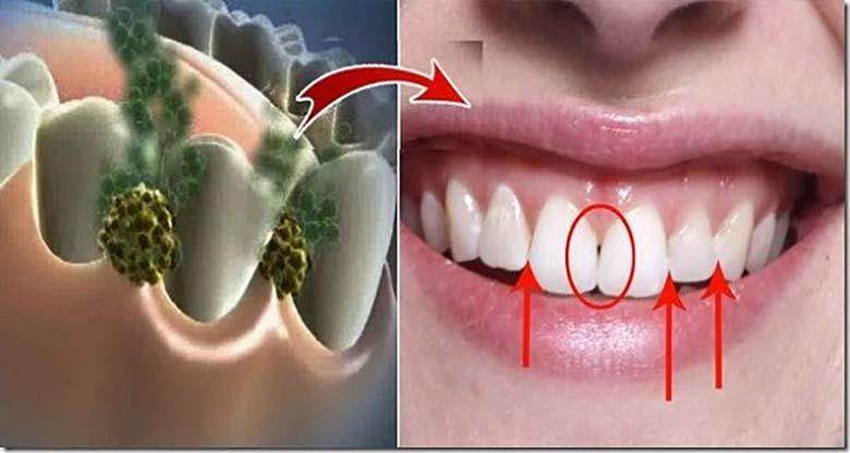 VABANE HALVAST HINGEÕHUST 5 MINUTIGA! SEE vahend hävitab kõik halba hingeõhku tekitavad bakterid
