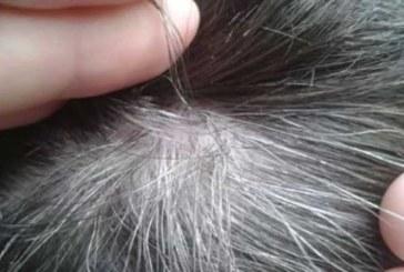 VÄHKI POLE VÕIMALIK HAIGESTUDA, kui teie juustes leidub seda…