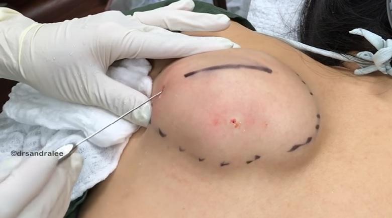 VIDEO: Dr. SANDRA LEE EEMALDAB pannkoogi suuruse lipoomi