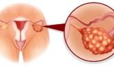 VARAJASED HOIATAVAD märgid munasarjavähi kohta, mida iga naine peaks teadma