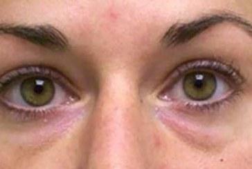 EFFEKTIIVNE JA LIHTNE NIPP, KUIDAS saada lahti tumedatest või kottis silmaalustest