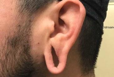 VIDEO: VAPUSTAV – VAATA, kuidas arst parandab ära väljaveninud kõrva
