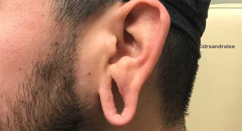VIDEO: VAPUSTAV - VAATA, kuidas arst parandab ära väljaveninud kõrva