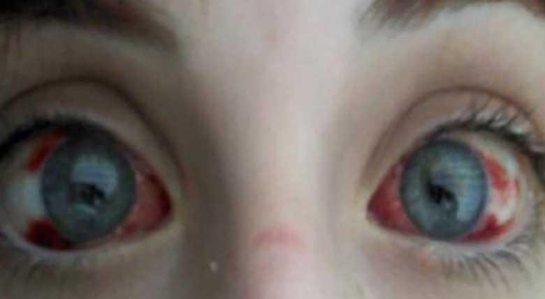HOIATUS! POISS KAOTAS 75% oma nägemisest väikese mänguasja tõttu, mis on ilmselt olemas ka sinu kodus