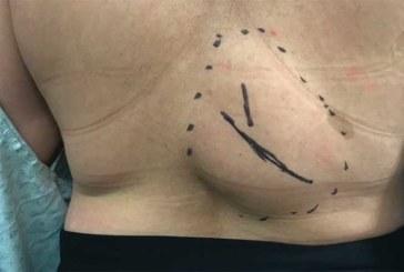 VIDEO: UHHH – VAATA, kuidas Dr. Sandra Lee selle ülisuure lipoomi tühjaks pigistab