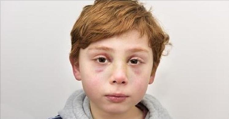 VANEMAD TAPAVAD 7-aastase poja – Arst leidis poisi käest kirja, mis murrab südame…
