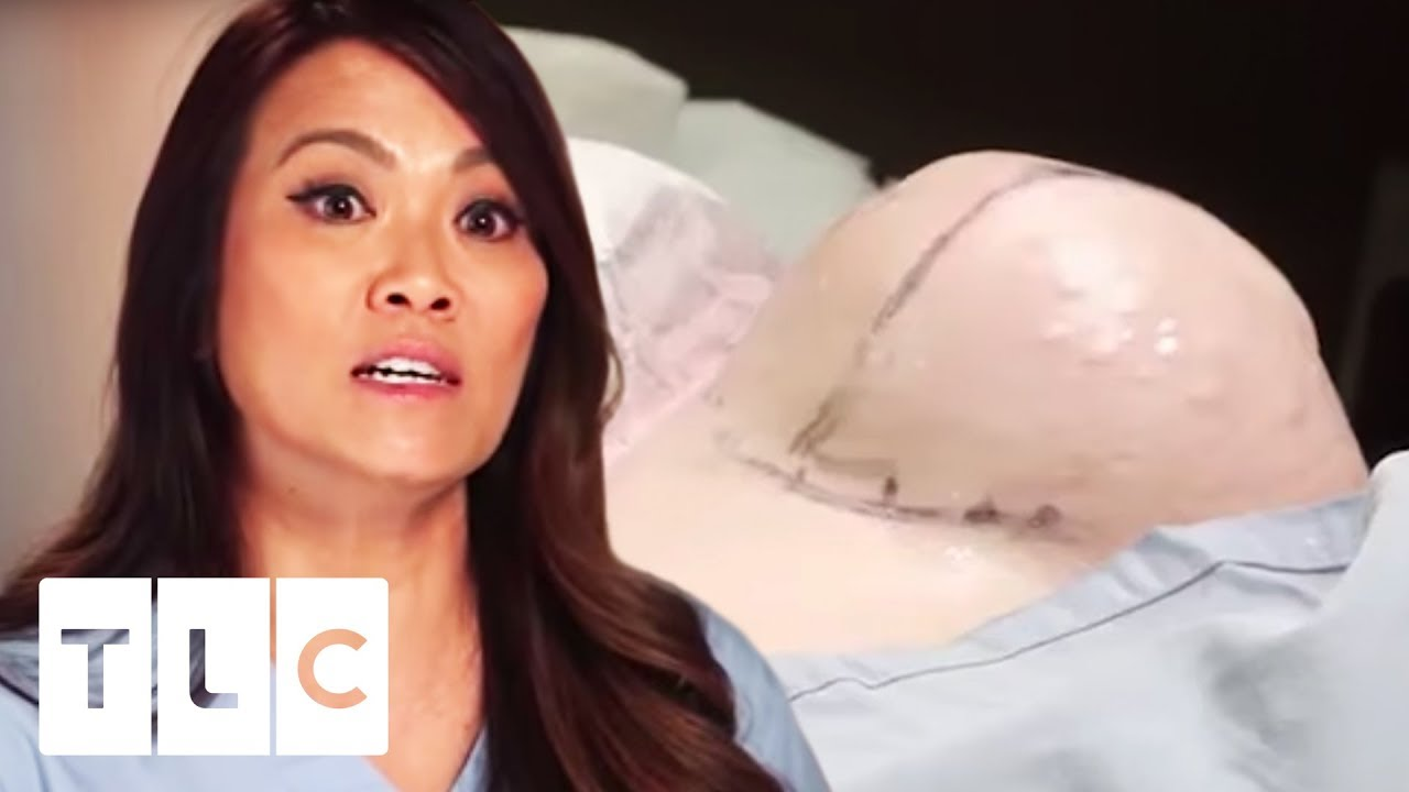 VIDEO: UHHH- SELLE lipoomi sisu on nagu toores kana
