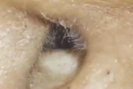 VIDEO: UHHH – VAATA, mis selle naise kõrvast välja tuleb