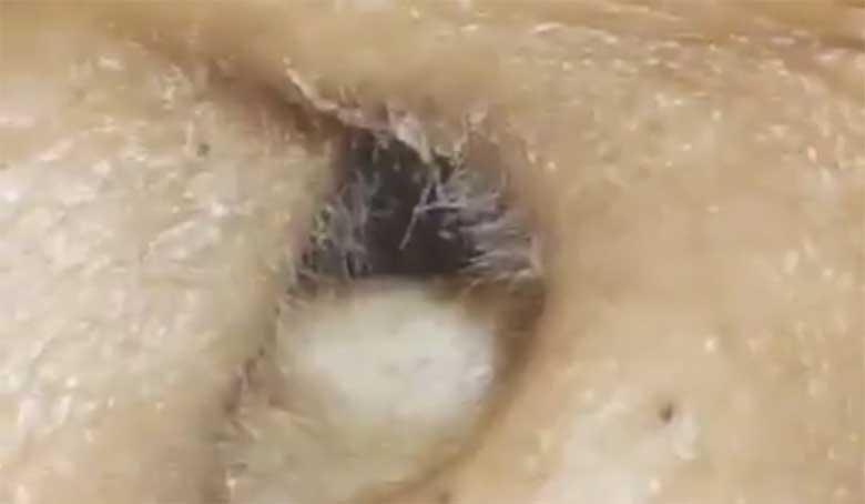 VIDEO: UHHH - VAATA, mis selle naise kõrvast välja tuleb