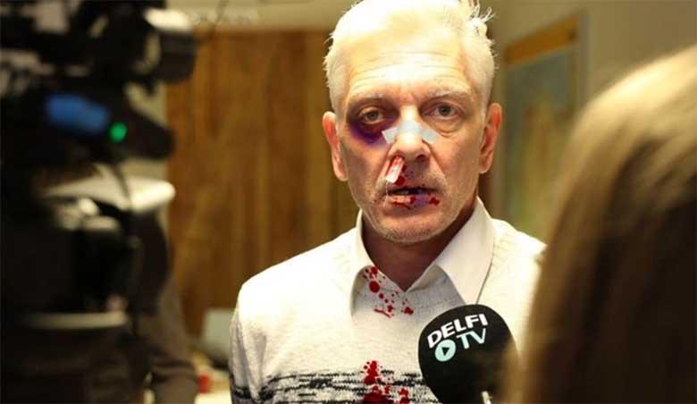 Indrek Tarand tuli täna ajakirjanike ette verise kampsuni ja sinise silmaga