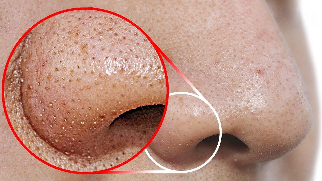TEE seda, et eemaldada mustpead oma ninalt