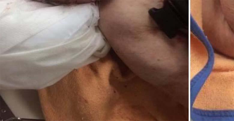 JUBEDAD FOTOD: Rootsis vanainimesed ohus - 83-aastast Ivarit põletati ja vigastati kõrvu
