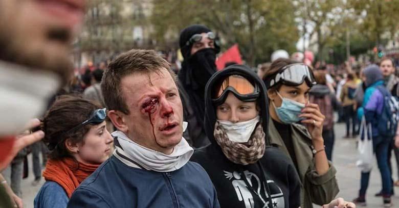ŠOKEERIVAD FOTOD:  Prantsusmaa politsei tulistab inimesi näkku. Nõrganärvilistele ei soovita