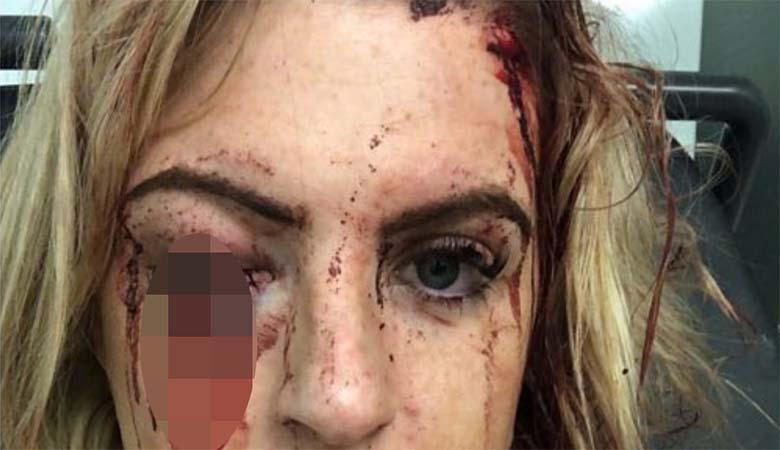 KÕIGI INGLISMAA: Võikad fotod - Birminghamis peksid kaks meest naist haamritega, et varastada tema Audi A1