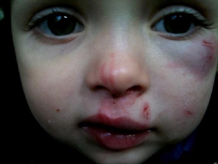 Rasedale naisele määrati vanglakaristus 8-aastase lapse koerarihmaga peksmise eest...