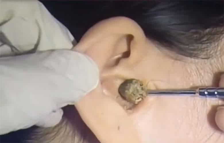 VIDEO: APPI, kui rõve – See tüdruk polnud aastaid oma kõrvu puhastanud. Vaata, mis sealt kõrvast välja tuleb