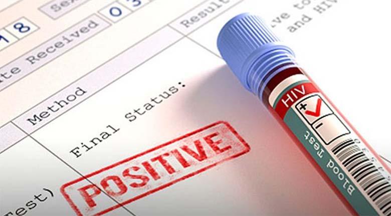 ÕUDNE AVASTUS – Koroonaviirus võib käituda nagu HIV,  hävitades inimese immuunsüsteemi